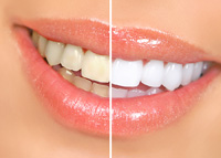 Tooth Whitening Hyannis, MA and Cape Cod